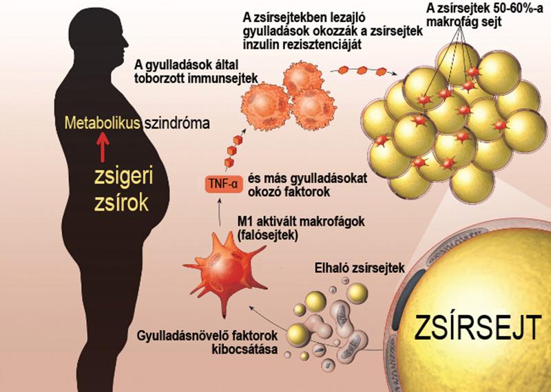 Milyen változásokat okoz az étrend a belekben és ez hogyan vezet inzulinrezisztenciához?